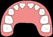 子供の上の歯